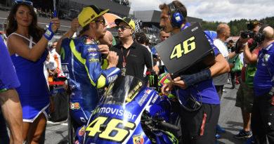 Valentino Rossi Motocross Injury 2017